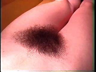 O sonho: mulheres peludas 4