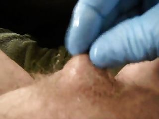 Pênis minúsculo