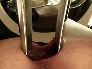 espéculo gigante, anal close-up, super enfermeira, médico